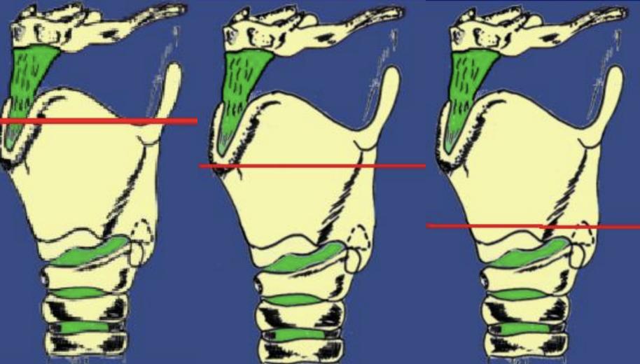 Illustration de différentes coupes d'IR