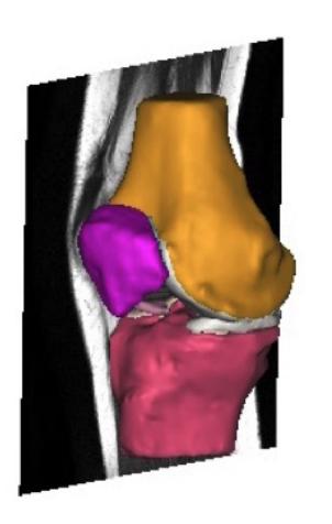Représentation de la coupe de l'IRM (Source : Automated Segmentation of the Meniscus - Felicia Aldrin)