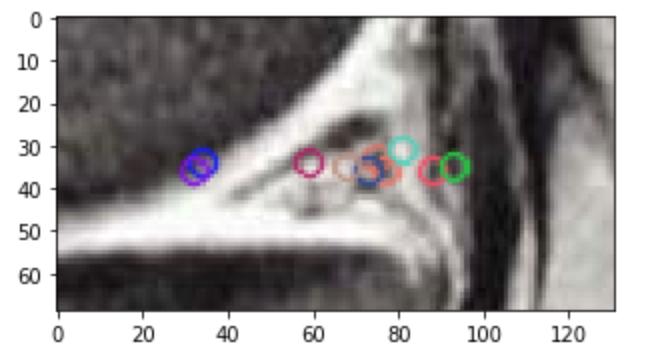 Keypoints extraits avec OpenCV sur une image de ménisque